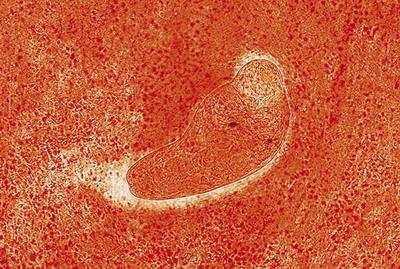 Paraziti v mozku, Papilloma virus e pap test