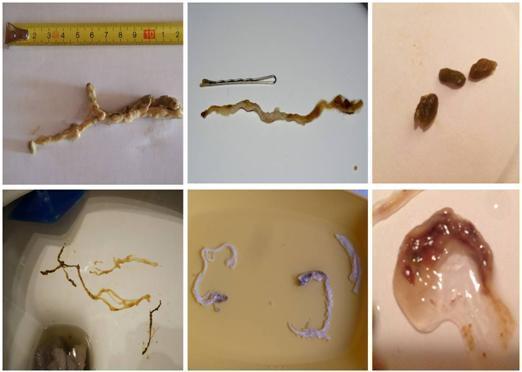 paraziti ve strevech u deti)